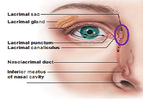 Diseases of the lacrimal sac
